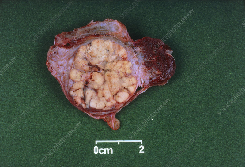 Excised cancerous ovary