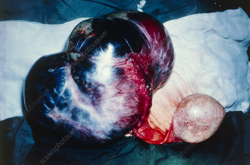 Surgical removal of bialateral ovarian cysts