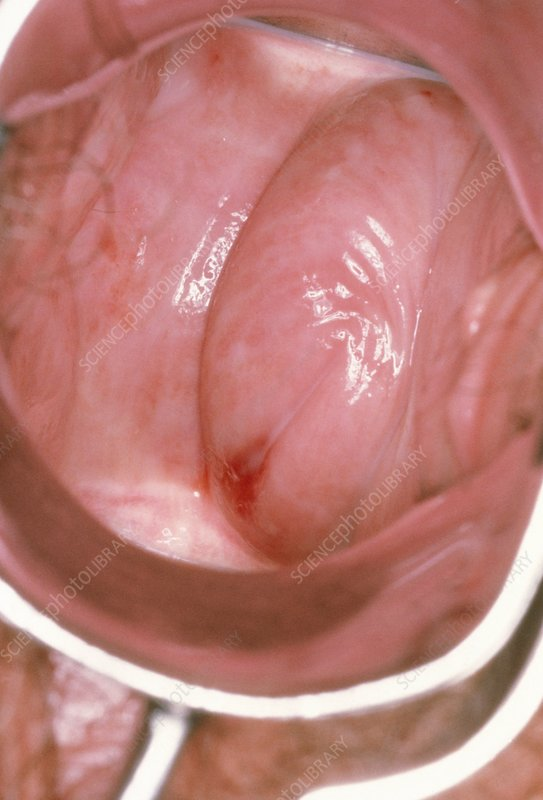 Colposcope image showing vulvo-vaginitis