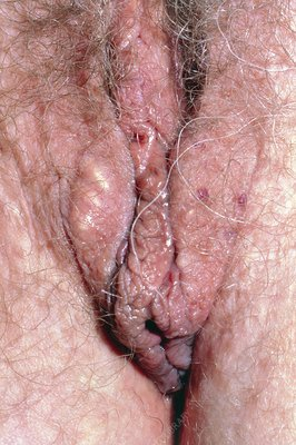 Sebaceous cysts on vulva