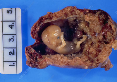 Excised fallopian tube with an ectopic pregnancy