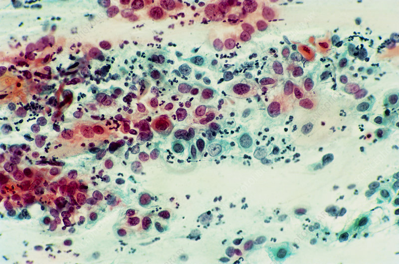LM of severe dysplasia in a cervical smear