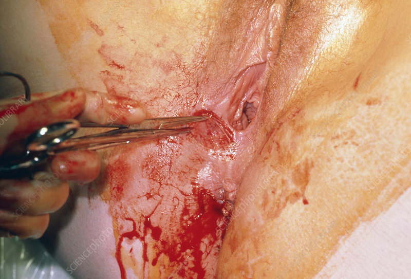 Close up of episiotomy wound exploration
