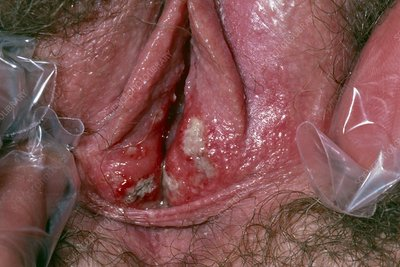 Vulval ulcers - unknown cause