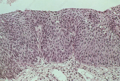 LM of grade III cervical intraepithelial neoplasia