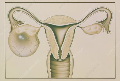 Artwork showing large ovarian cyst