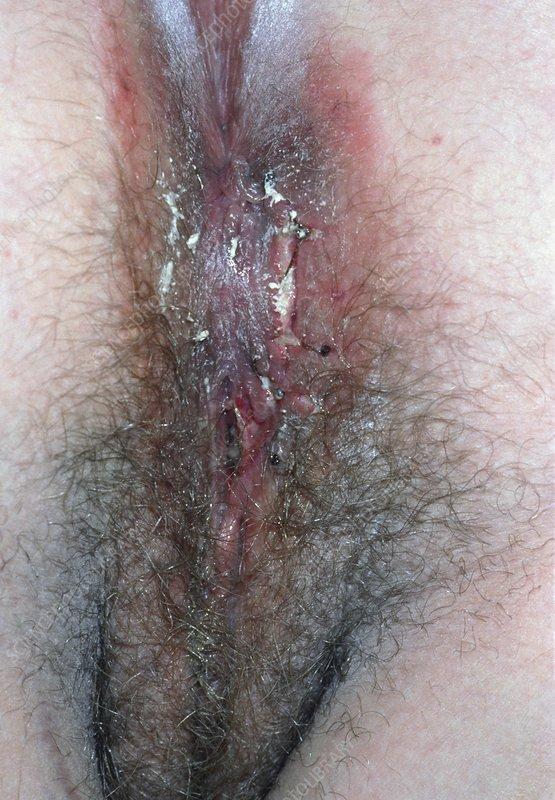 seks-posle-epiziotomiya
