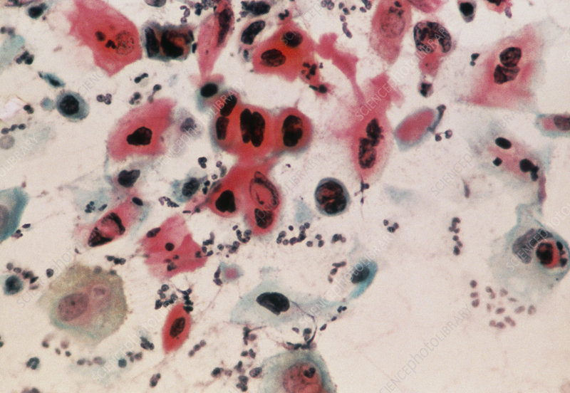 LM of cervical smear showing severe dysplasia