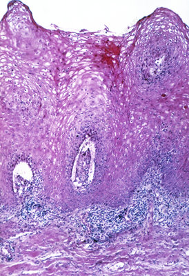 LM of section of through a genital wart