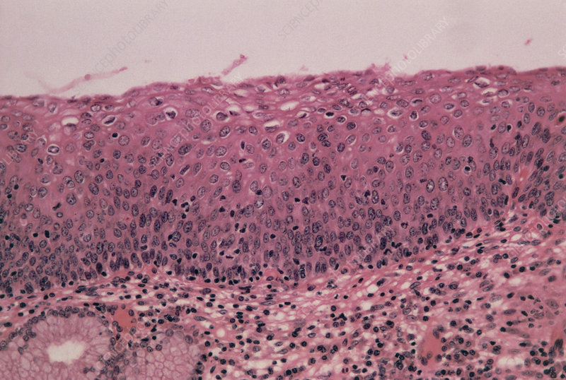 LM of cervical cells showing mild dysplasia (CIN1)