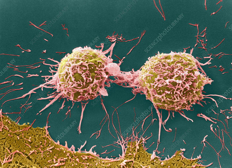 SEM of cervical cancer cells dividing