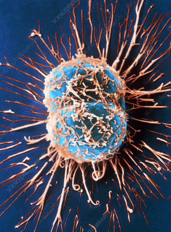 Cervical cancer cells dividing, SEM