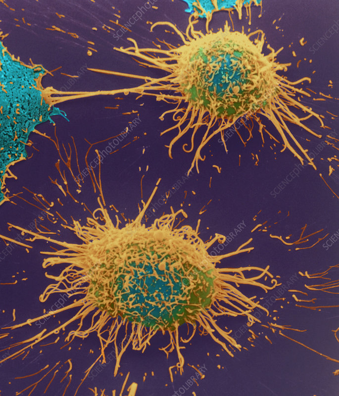 Coloured SEM of cervical cancer cells