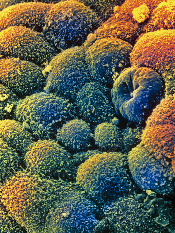Coloured SEM of cancer cells of the ovary