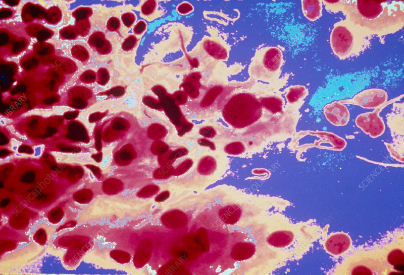 Colour-enhanced LM of a healthy cervical smear