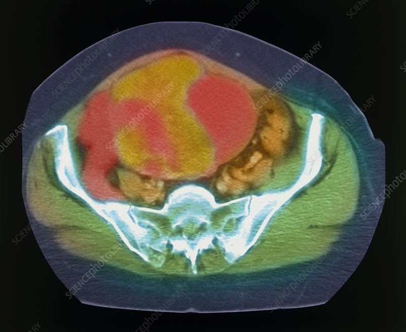 Coloured MRI scan of ovarian cancer