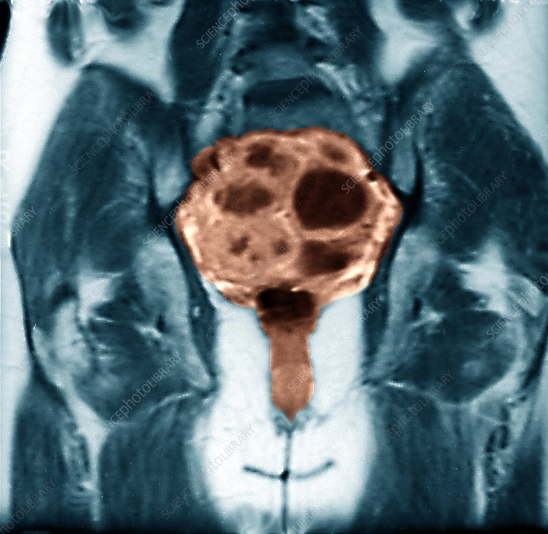 Ovarian cancer, MRI