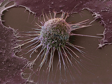 Cervical cancer cell, SEM