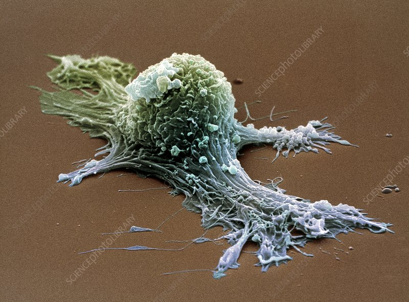 Ovarian cancer cell, SEM