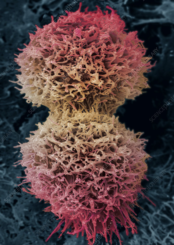 Dividing cervical cancer cell, SEM