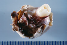 Dermoid cyst of the ovary