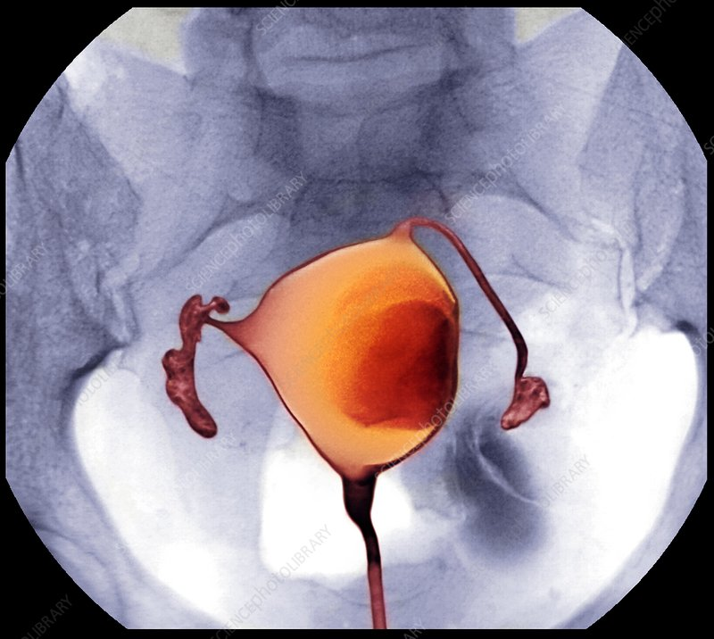 Uterine fibroid, X-ray