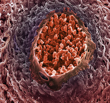 Ovarian cancer blood vessel, SEM