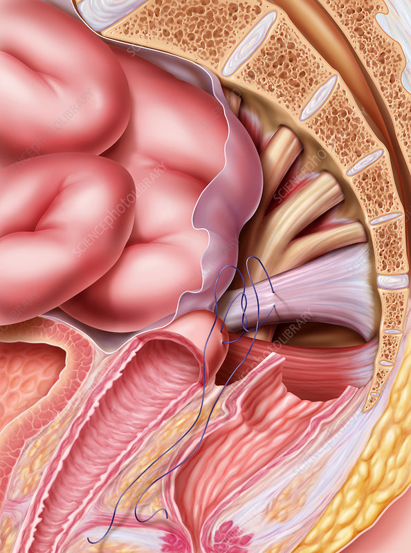 Vaginal Vault Prolapse - Stock Image - M850/0590 - Science Photo Library