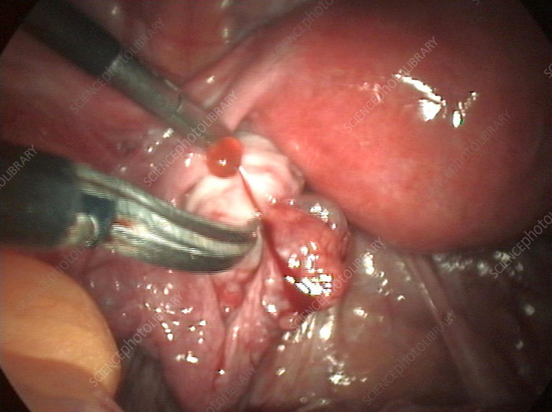 Removal of fallopian tube cyst
