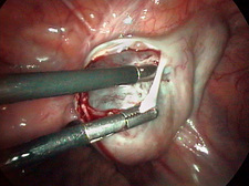Removal of an ovarian cyst (1 of 4)