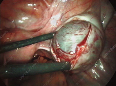 Removal of an ovarian cyst (2 of 4)