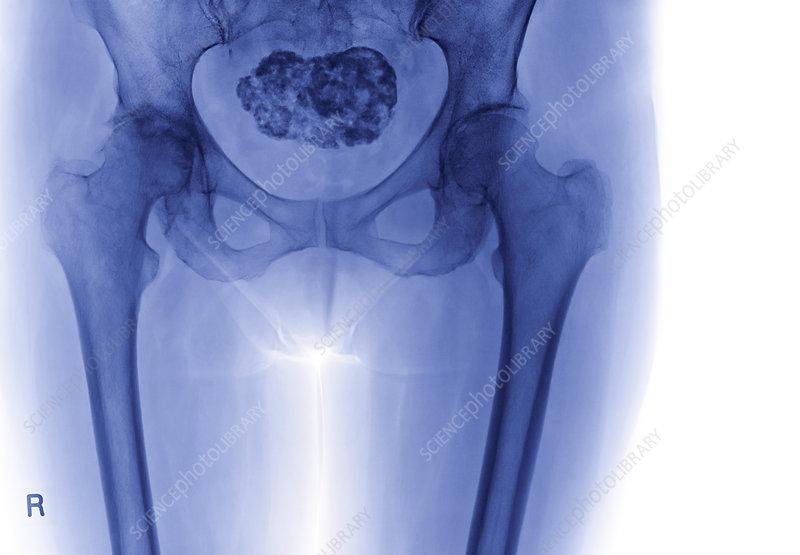 Calcified uterine fibroid, X-ray