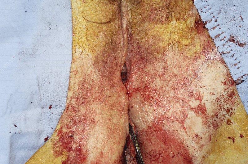 Vaginal prolapse repair surgery