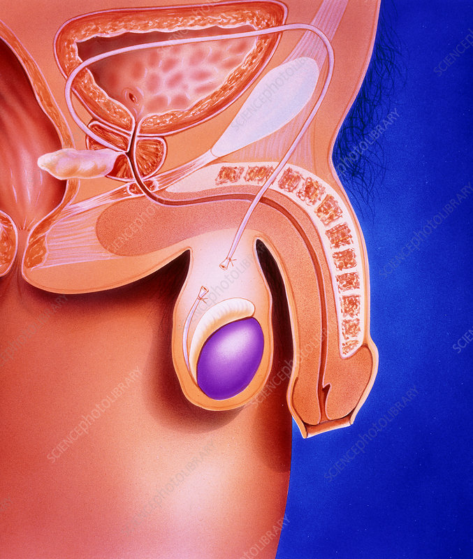 Artwork showing a vasectomy operation