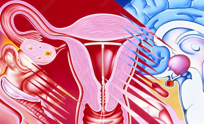 Art of female contraceptives: diaphragm, IUD, pill