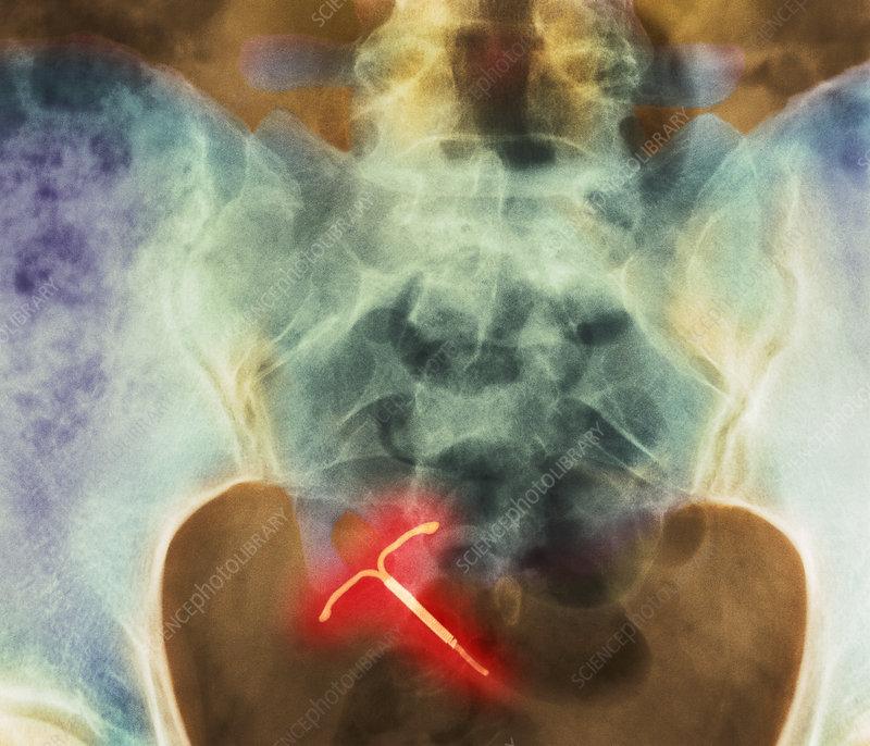 IUD contraceptive, X-ray