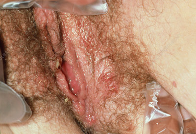 Genital herpes: vulval lesions