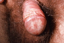 Candidal balanitis: thrush infection of penis