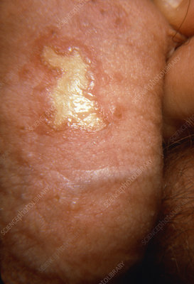 Herpes simplex infection on male genitals