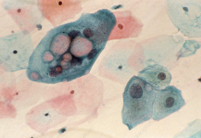LM of cervical smear: Chlamydia infection