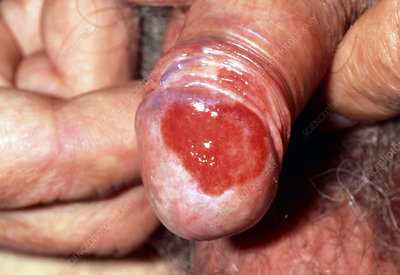 Close-up of penis affected by candidiasis (thrush)