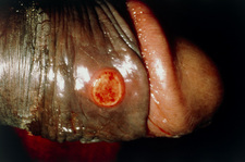 Syphilis chancre on penis