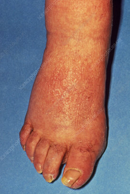 Rash & swelling on foot due to secondary syphilis