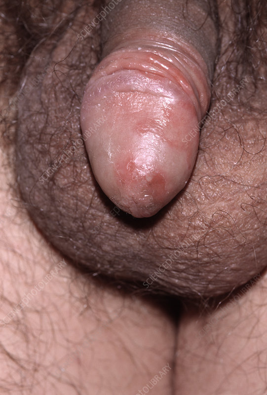 Penis Candidiasis 79