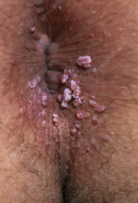 Untreated anal warts