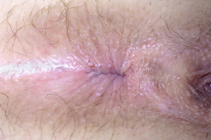 Phrase genital anal warts women pictures