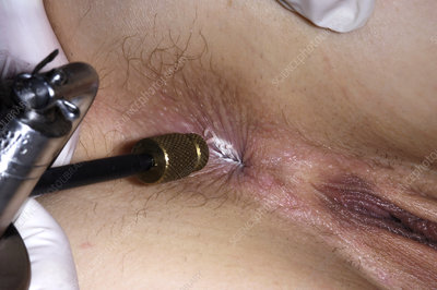 Genital wart treatment