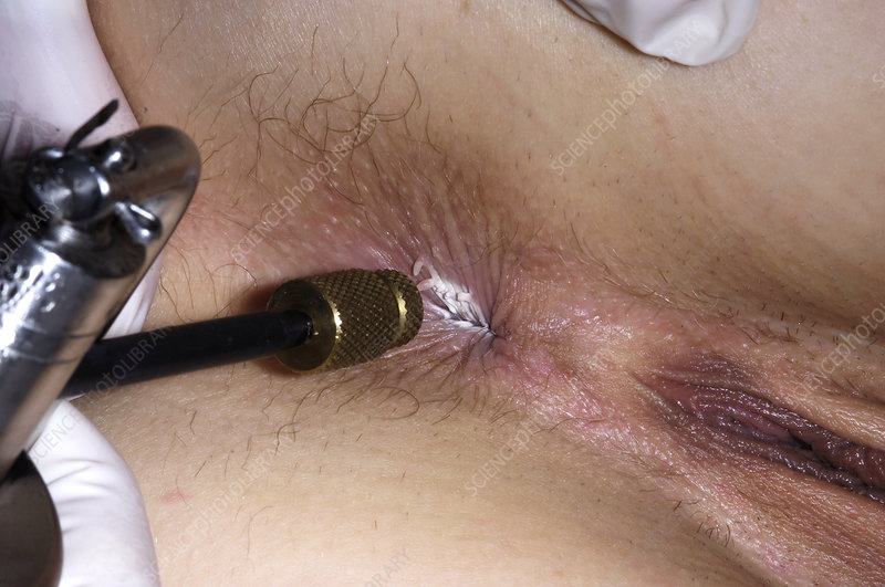 Cryotherapy anal warts