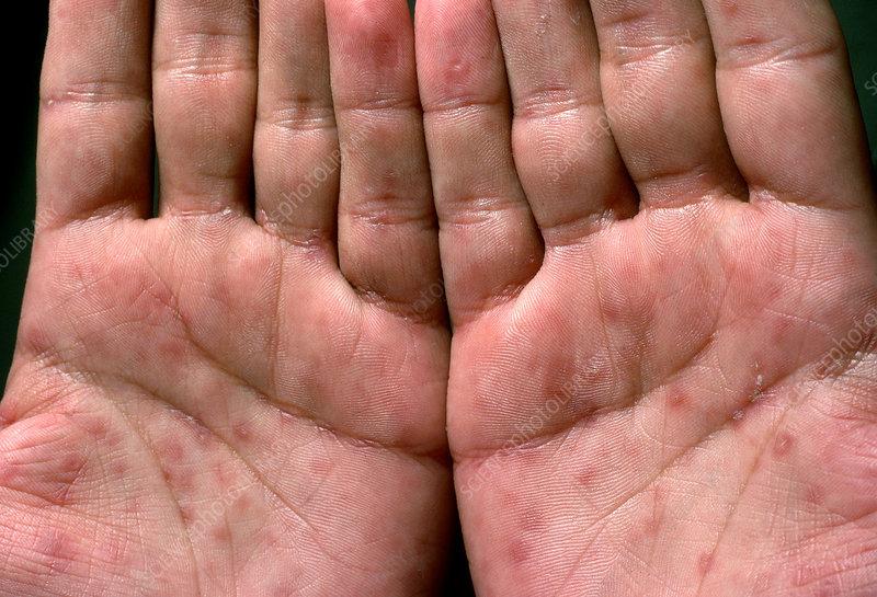 Mundrose Periorale Dermatitis Apotheken Umschau