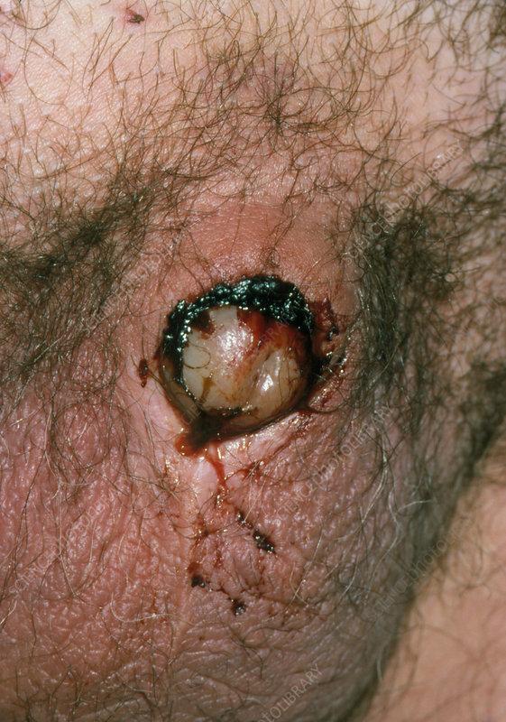 Infected Uncircumcised Penis 114